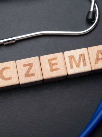Eczema Main
